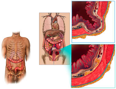 Normal Sigmoid Colon Wall vs Sigmoid Diverticulum