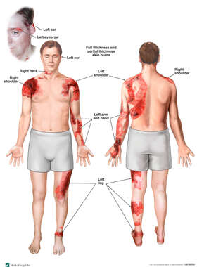 Burn Injuries to the Face, Shoulders, Arm and Leg