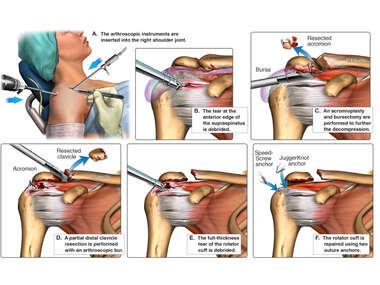 Right Shoulder Injuries with Subsequent Arthroscopy