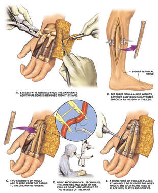 Metacarpal Reconstruction Using Fibular Strut Graft