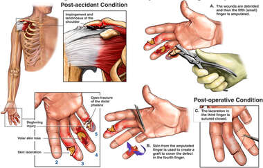 Traumatic Right Hand and Shoulder Injuries with Surgical Repairs