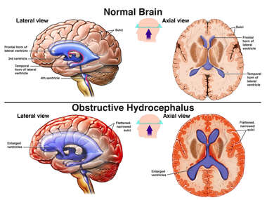 Normal Brain vs. Obstructive Hydrocephalus