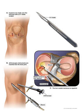 Surgical Meniscectomy Procedure