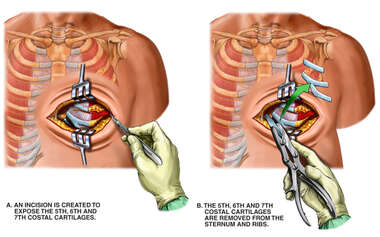 Chronic Pain of the Chest Wall with Rib Resection Procedure