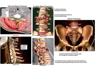 Cervical, Lumbar and Pelvic Fractures