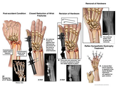 Left wrist Fractures with Multiple Surgical Repairs