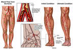 Progression of Arterial Blockage in the Right Leg