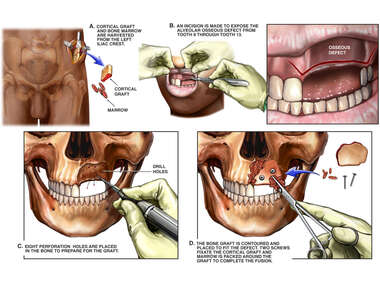 Reconstruction of Maxillary Defect with Iliac Crest Bone Grafts and Reconstruction of Maxillary Defect