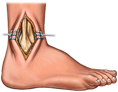 Lateral Surgical Exposure of Ankle Joint
