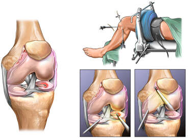 Left Knee Injury with Arthroscopic Repairs