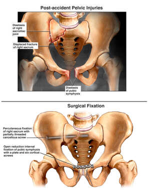 Post-accident Pelvic Injuries and Surgical Fixation