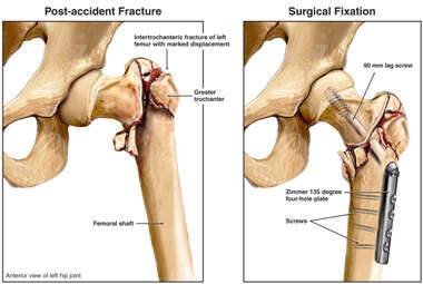 Fractured (Broken) Hip with Fixation Surgery