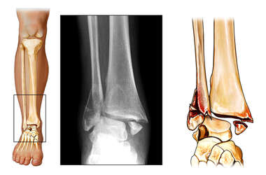 Bimalleolar Right Ankle Fractures