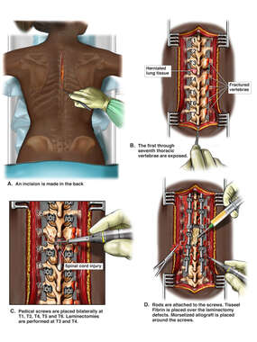 Surgical Decompression and Fusion of the Thoracic Spine