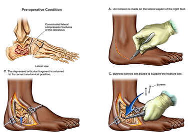 Calcaneal Fracture Fixation