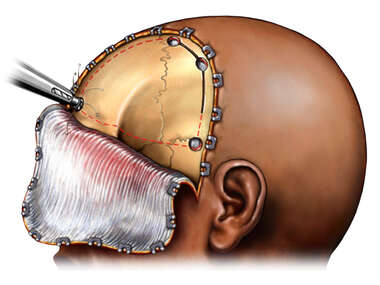 Craniotomy Exposure