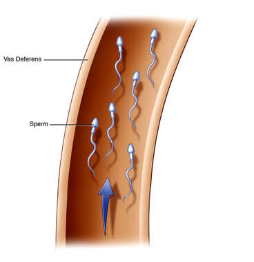 Sperm Passage in Ductus Deferens