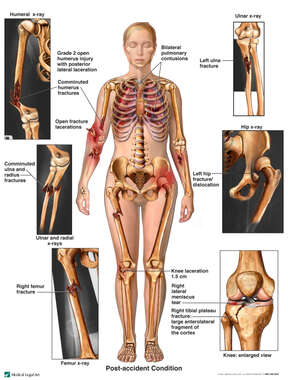 Fracture Injuries to the arms and legs