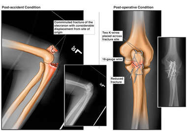 Colorixed X-Ray Films with Post-accident and Post-operative Condition of Elbow Fractures