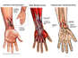 Post-accident Left Wrist Injuries