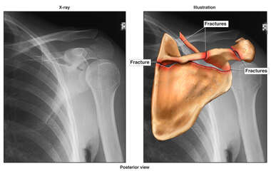 Colorized X-Ray Film with Post-accident Scapular Fracture