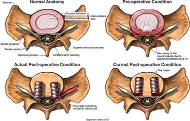 Misplaced Lumbar Fusion Cages with Nerve Root Impingement