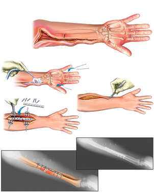Right Arm and Hand Injuries with Surgical Repair