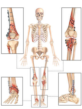 Plate Fixation of Knees and Ankles