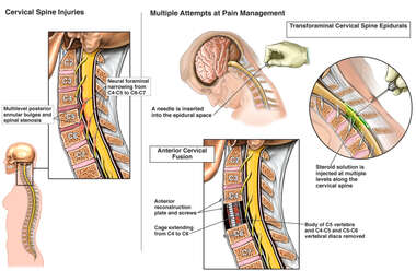 Cervical Spine Injuries with Multiple Attempts at Pain Management