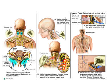 Post Cervical Fusion Pain Management Attempts