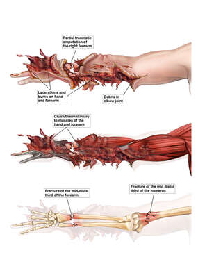 Traumatic Amputation of Right Arm