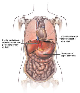 Female Figure with Post-accident Injuries of the Suprahepatic Vena Cava, Stomach, Colon and Liver