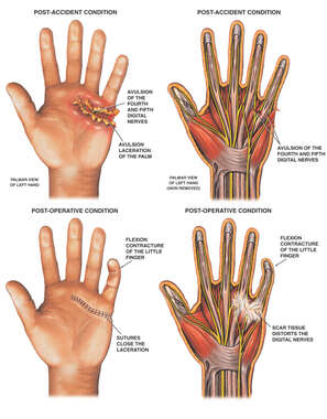 Post-accident Hand Injury