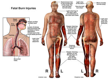 Fatal Burn Injuries