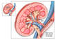 Optimal Post-operative Condition of Renal Transplant