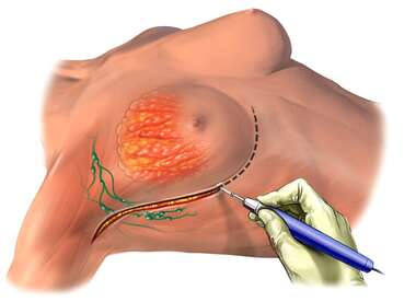Mastectomy Surgery, Lateral View