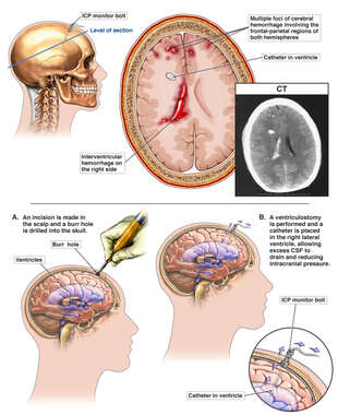 Traumatic Brain Injury with Surgical Ventriculostomy