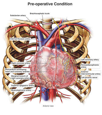 Arteries of the Thorax