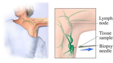 Core Lymph Biopsy