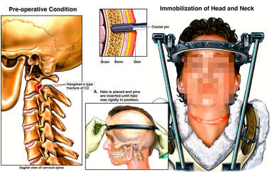 Cervical Fracture and Immobilization of Head and Neck