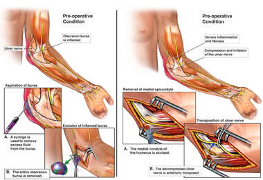 Post-accident Elbow Injury and Surgical Repair