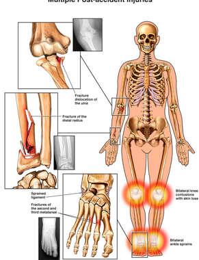 Female Skeleton with Multiple Post-accident Injuries to the Elbow, Forearm, Bilateral Knees and Feet