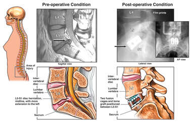 Pre and Post-operative Conditions of Lumbar Spine