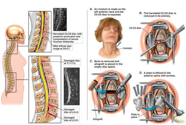 Traumatic Spinal Injuries with Cervical Discectomy and Fusion Surgery