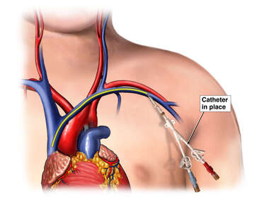 Catheter in Left Subclavian Vein