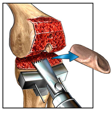 Knee Surgery with Removal of Tibial Plateau