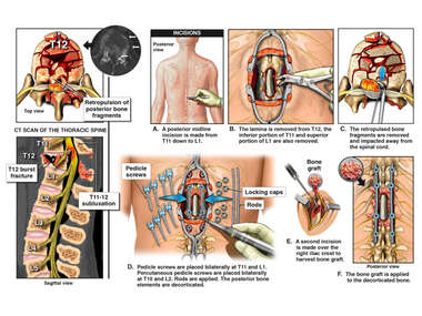 Thoracic Spine Injury with Paraplegia and Surgery