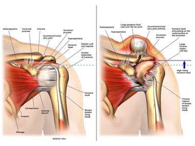 Normal Left Shoulder Anatomy vs Shoulder with Chronic Rotator Cuff Tear and Humeral Head Escape Syndrome