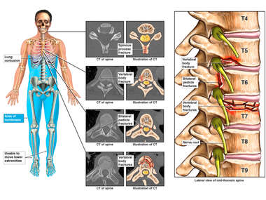 Traumatic Injuries to Neck, Head, Back, and Ribs