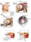 Shoulder Injuries with Arthroscopic Repairs